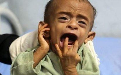 شکلگیری بزرگترین قحطی قرن در یمن