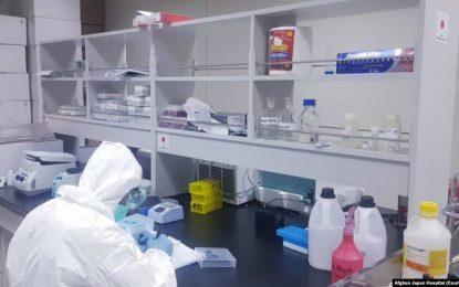 صد مورد جدید ویروس کرونا در یک شبانه روز در افغانستان ثبت شده است