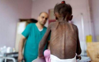 ۸۵ هزار کودک یمنی در اثر جنگها در این کشور جان باختهاند