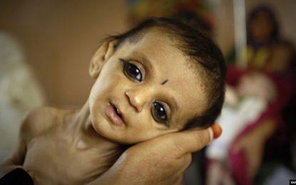 حدود ۲ و نیم میلیون کودک در کشور از سوء تغذیه رنج میبرند