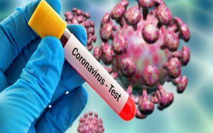 تاکنون ۳۶.۷ میلیون دالر برای مبارزه با ویروس کرونا مصرف شده است